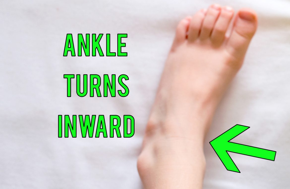 Foot Pronation Distortion Syndrome
